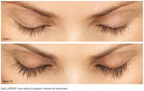 Latisse Eyelash Before After Photos Chula Vista, CA