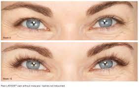 Latisse Eyelash lengthening Patient San Diego, CA
