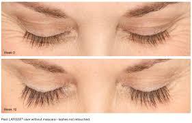 Latisse Eyelash Patient San Diego, CA