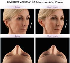 Juvéderm Voluma XC Patient Before After San Diego, CA