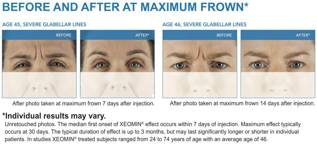 XEOMIN Wrinkle Removal Patient