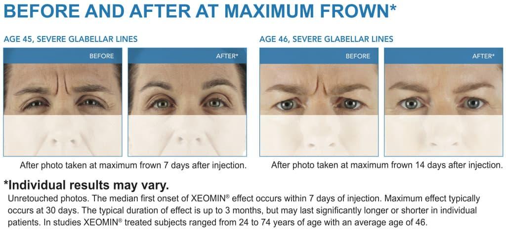 XEOMIN Paciente de eliminación de arrugas