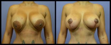Patient #99741403